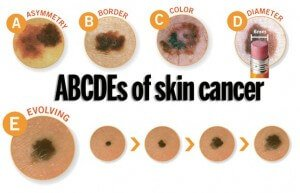ABCDEs of skin cancer 12dc6w1 300x193 (1)