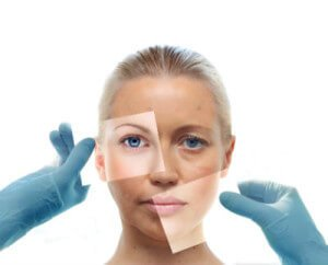 Facial rejuvenation 300x242 (1)
